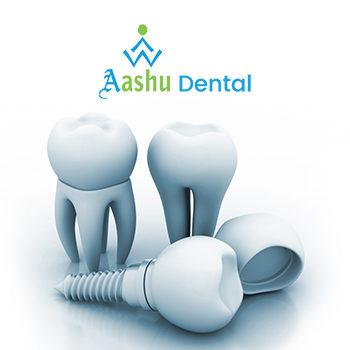Aashu Dentalclinic